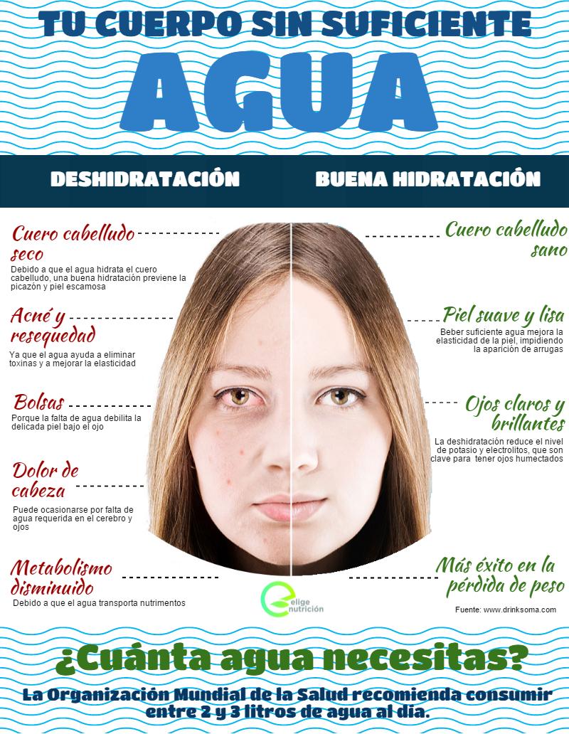 Deshidratación. Infografía. EN